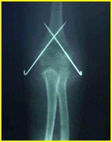 肱骨髁上骨折闭合复位经皮克氏针内固定术