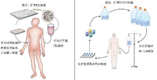 病理诊断一般需要做免疫组化得以明确诊断