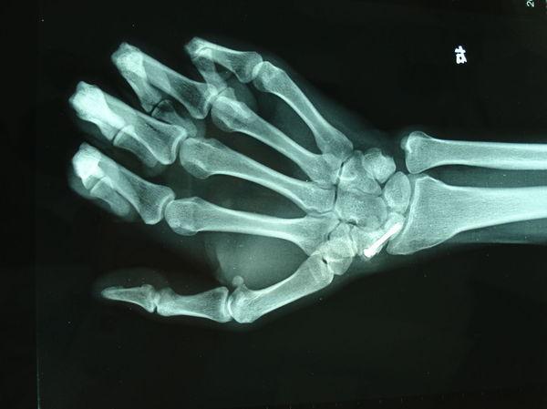 如何治疗手部骨折