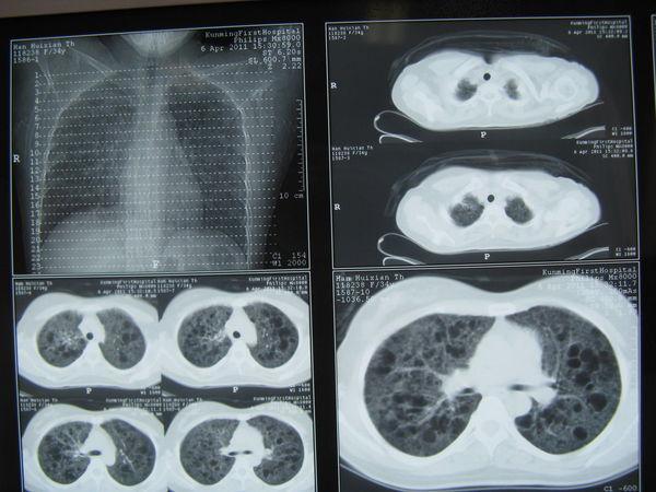 肺微观结构