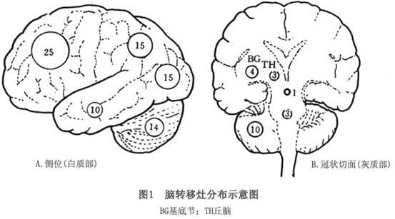 大脑简笔画步骤