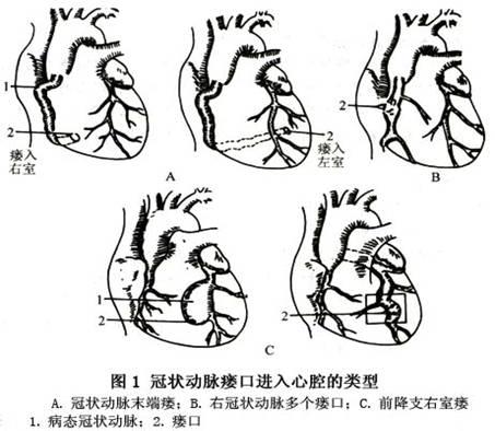 手绘心脏解剖图平面
