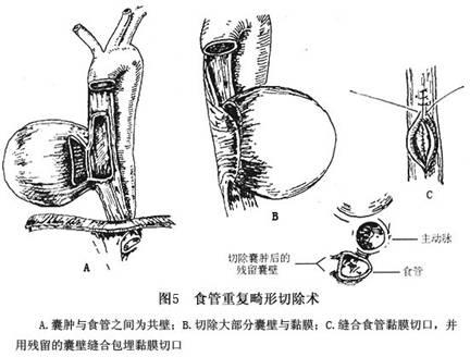 钝性分离法进行解剖、分离,完整 游离囊肿:进胸后先剪开食管囊肿