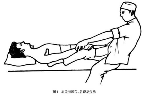 肩关节脱位的概念 肩关节脱位 肩关节半脱位