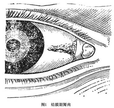 白眼球上长了胬肉图片_翼状胬肉