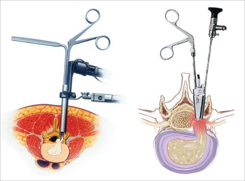 裂处脱出,压迫腰椎神经   髓核射频消融手术示意图   髓核明显脱出