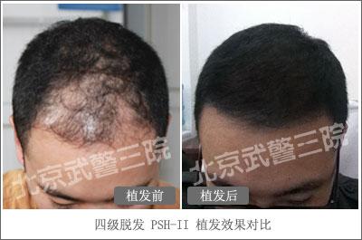 II显微高密毛囊移植术