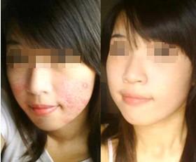 脸上长痘痘是什么原因怎么消除痘痘