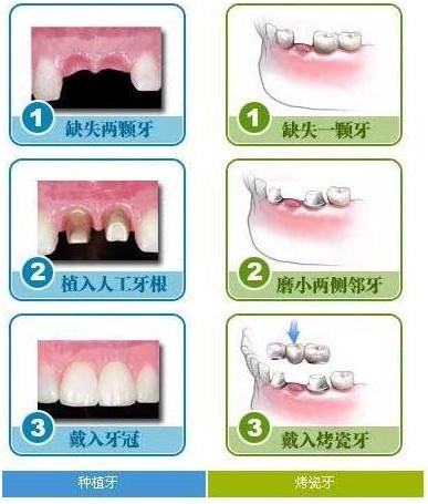烤瓷牙和种植牙的区别