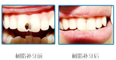 美国纳米树脂补牙,让牙齿恢复如新