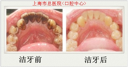 洗牙前和洗牙后的照片-3D数码深层洁牙护理,成就360 超洁净皓齿