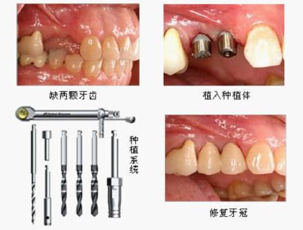 多颗牙齿缺失做种植牙好吗