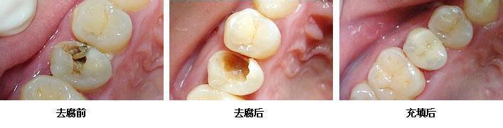 补牙是牙齿一个很基本的小手术