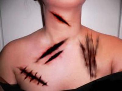 皮肤结构表皮层凹陷