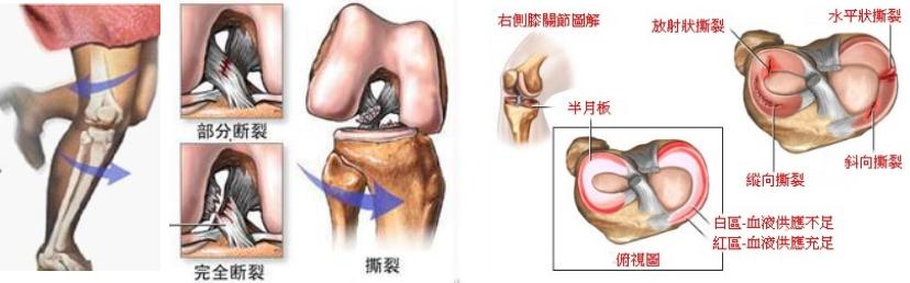关于膝关节交叉韧带和半月板损伤的那些事